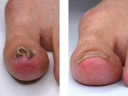 巻き 爪 治療